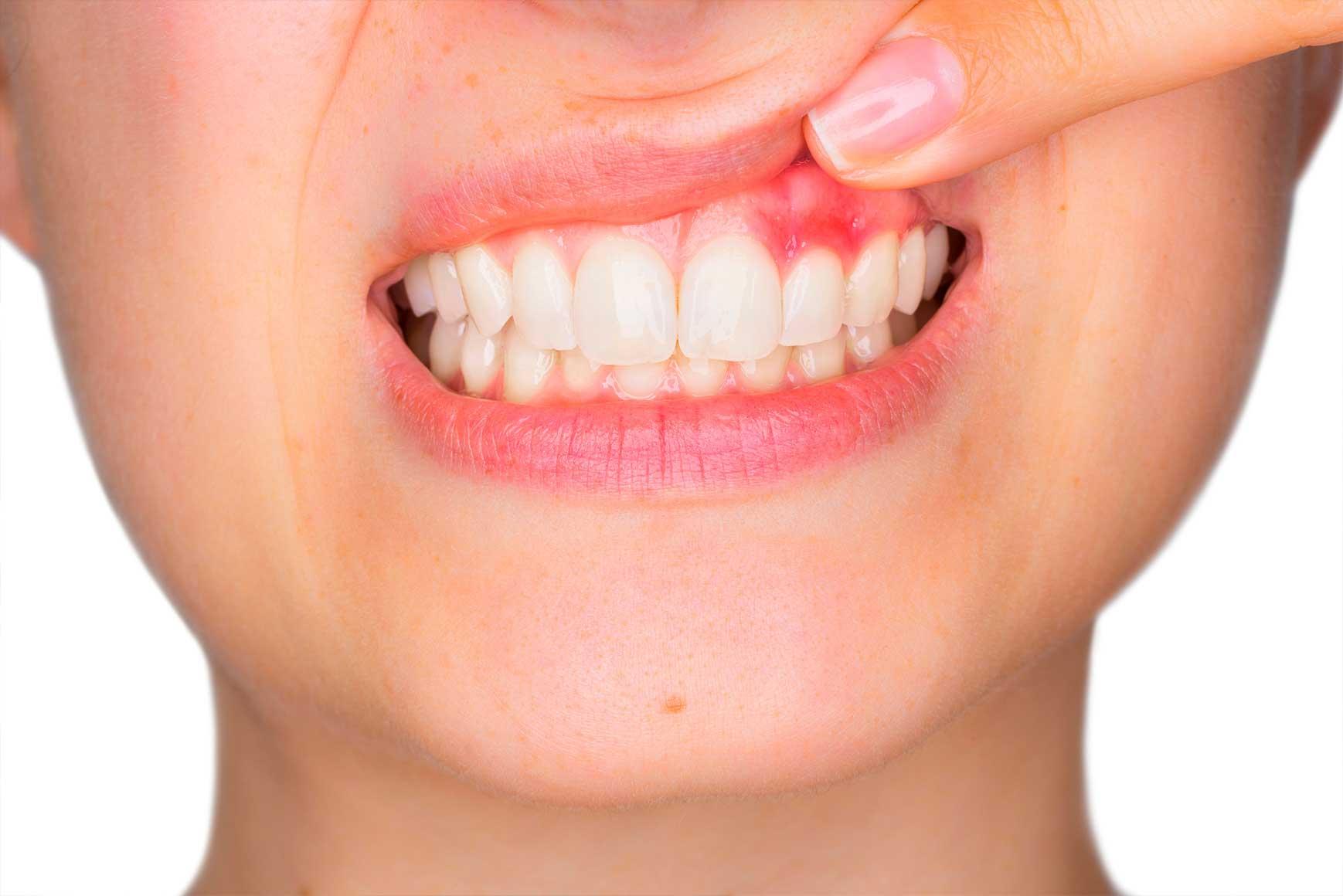 炎 治療 歯肉 【歯肉炎の原因と治し方】市販薬や歯磨き粉を使わず自分で治る!
