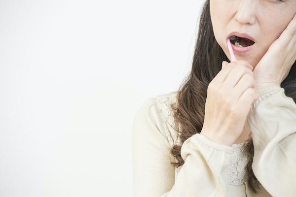 虫歯の原因と虫歯予防について