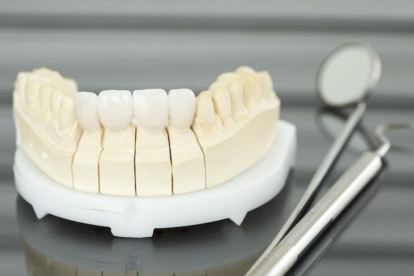 虫歯治療で使う歯科金属とセラミック保険診療と自由診療について