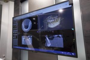 銀座・東銀座の歯医者_銀座みらい歯科 ブログ_インプラント治療の診断について_院内で撮影できるCTを大きなモニターに写した診療室