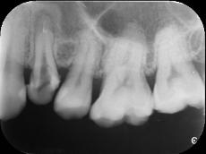 【症例】歯の根管内の異物除去について
