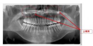銀座みらい歯科歯性上顎洞炎と副鼻腔炎 上顎洞と上顎の位置関係レントゲン画像