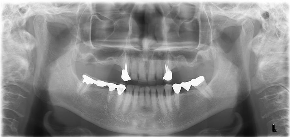 【症例】サイナスリフトテクニック(上顎洞底挙上術)を用いたインプラント治療