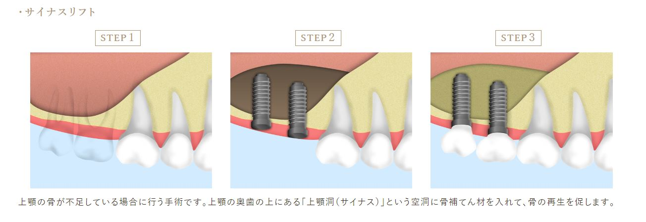 銀座みらい歯科上顎洞挙上術(サイナスリフト)の手順_インプラント治療