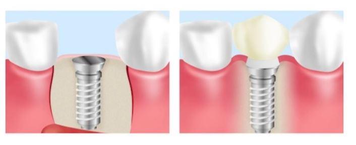 銀座みらい歯科インプラントのイメージ画像