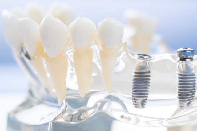 銀座みらい歯科インプラントキャンペーンイメージ画像