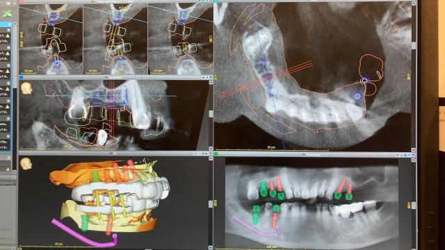 銀座みらい歯科ガイデッドサージャリーのコンピューター上の画面