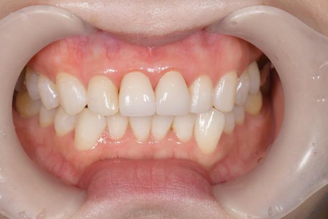 【症例】不自然な前歯に対するジルコニアセラミックでの審美歯科治療