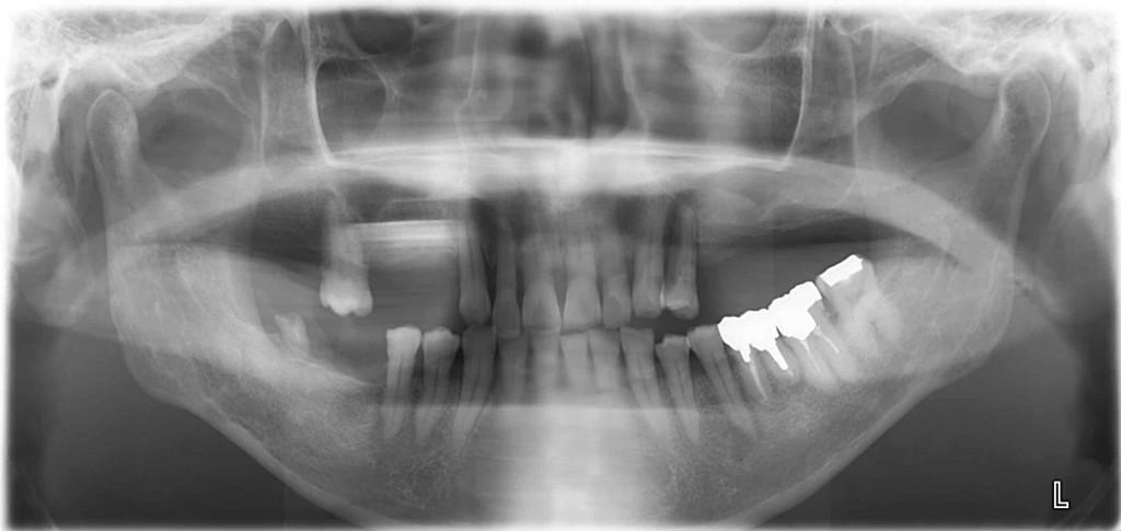 銀座みらい歯科インプラントのために上顎洞挙上術(サイナスリフト)が必要なケースのレントゲン写真