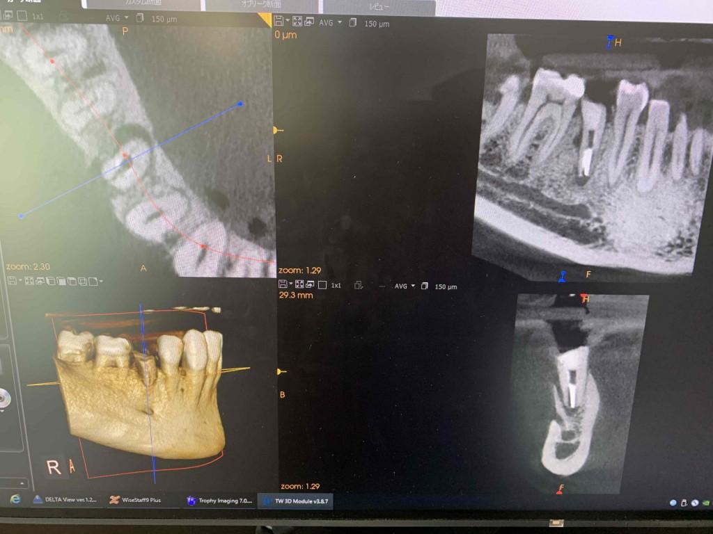 銀座みらい歯科院長コラム|歯の神経「歯髄」の処置について|処置前の歯の状態