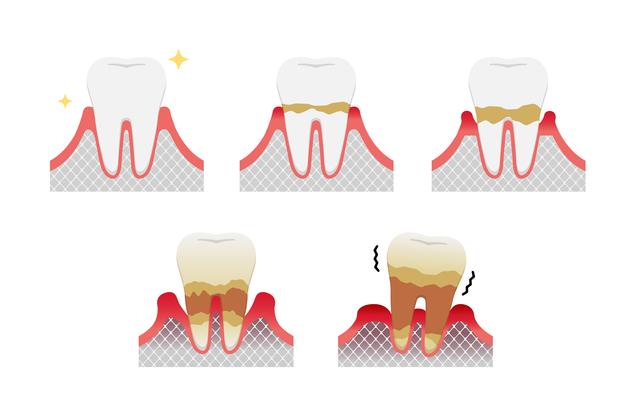 銀座みらい歯科院長コラム|噛み合わせの力と歯周病の関係|歯周病の進行で骨が溶けて歯を失う経過のイラスト