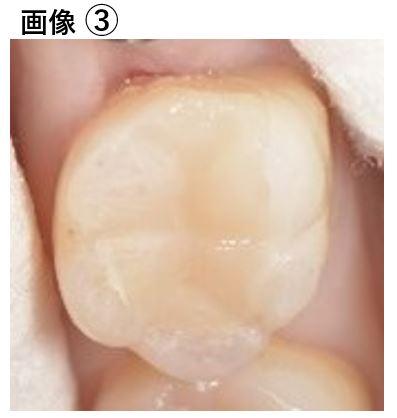 【症例】大きな虫歯に対するMTAセメントを用いた神経温存治療