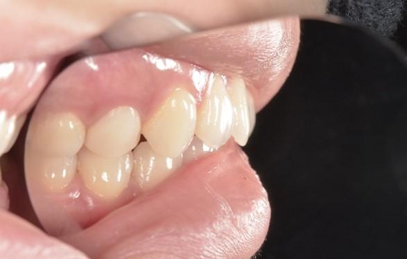 【症例】審美歯科領域におけるジルコニアセラミック修復