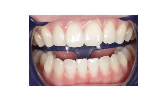 【症例】明るい色調の歯に対するホワイトニング