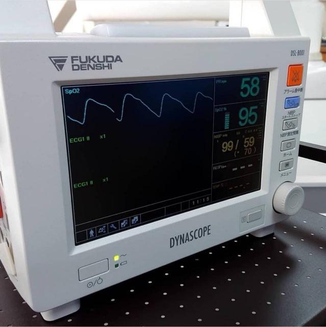 銀座みらい歯科|歯科医師ブログ|日本歯科麻酔学会認定医による静脈内鎮静法の説明|血中酸素のモニター