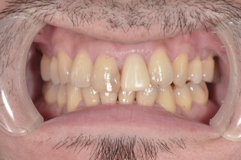 【症例】神経のない前歯の変色に対するジルコニアセラミックでの審美治療