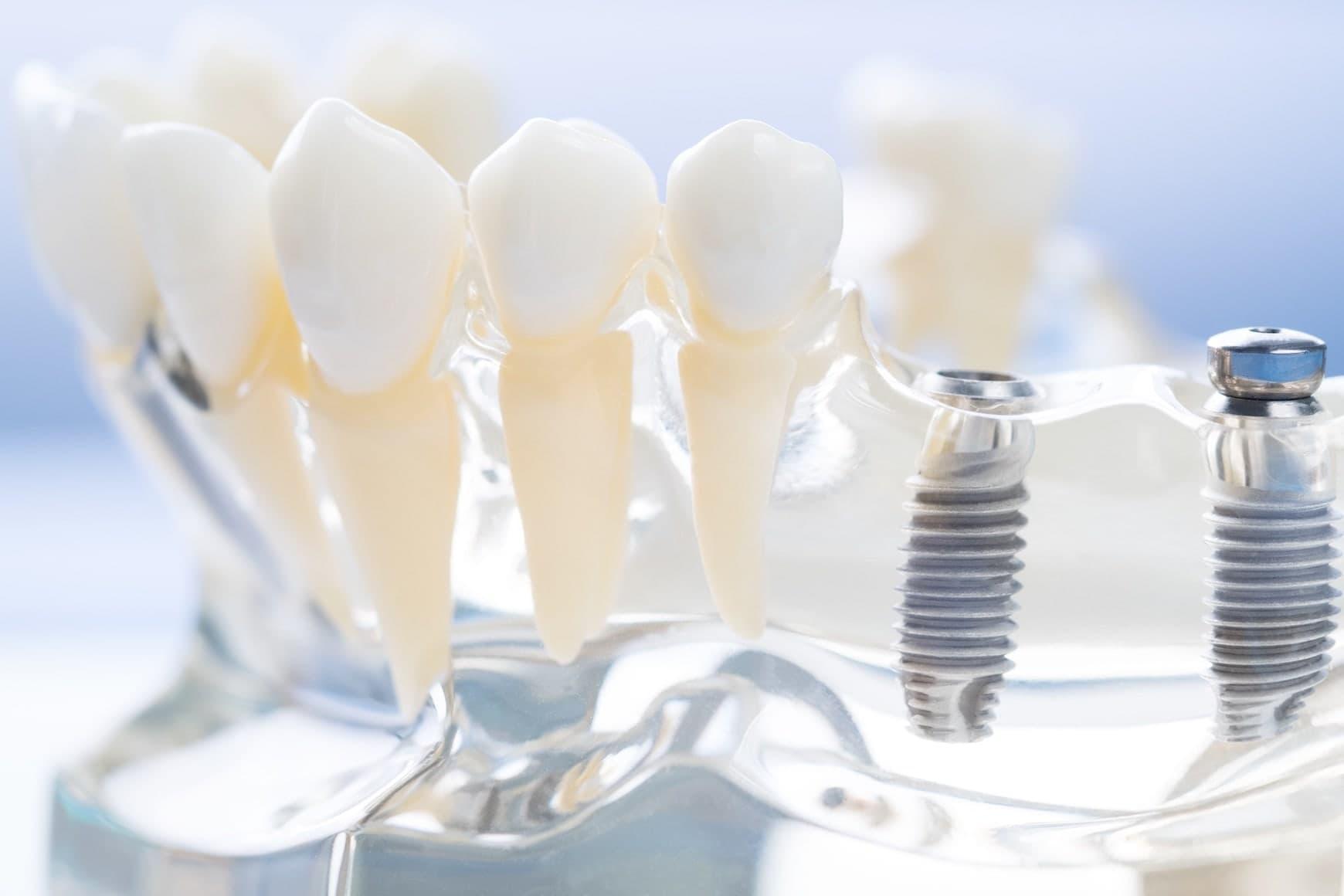 上顎のインプラント治療におけるソケットリフトとサイナスリフト
