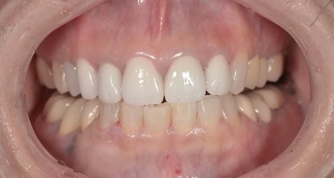 【症例】前歯の変色や形へのストレスを解決するジルコニアセラミックによる審美治療