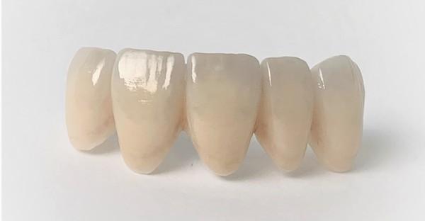 銀座みらい歯科で歯科治療に使用する高い技術による表面加工をされたジルコニアの被せ物のイメージ