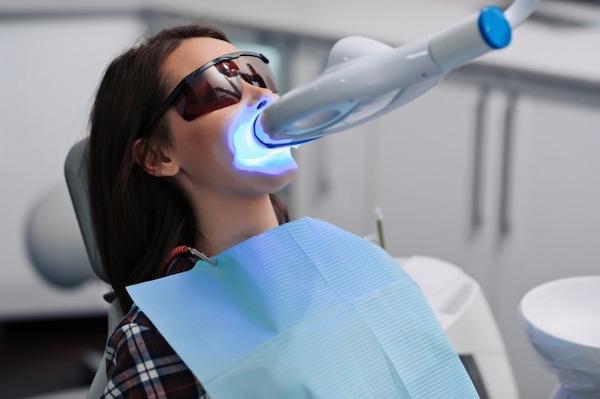 銀座みらい歯科でオフィスホワイトニングのライトを前歯に当てる女性のイメージ