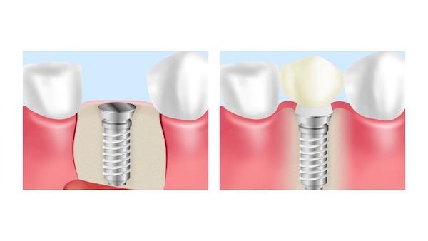 銀座みらい歯科のインプラントの説明で使用するインプラントの構造についての画像