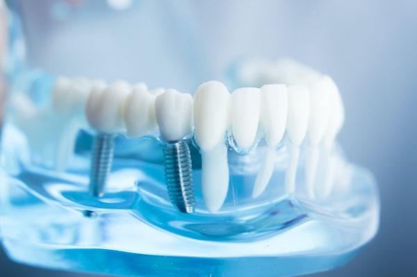 銀座みらい歯科 _インプラントと健康な歯の歯根が分かる透明な歯茎の模型