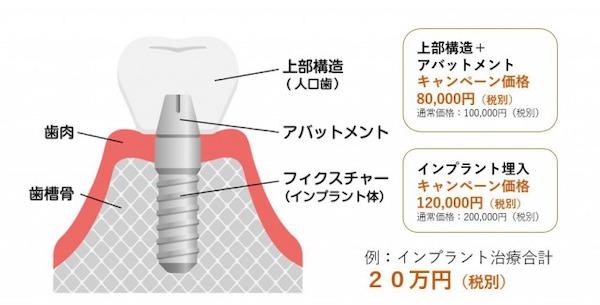 銀座みらい歯科 のインプラントキャンペーン_インプラントの構造と費用の内訳を説明した図