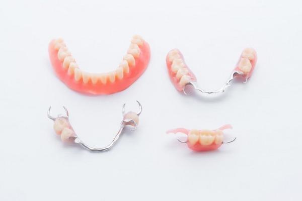 銀座みらい歯科 の様々な種類の義歯(入れ歯、部分入れ歯、デンチャーなど)