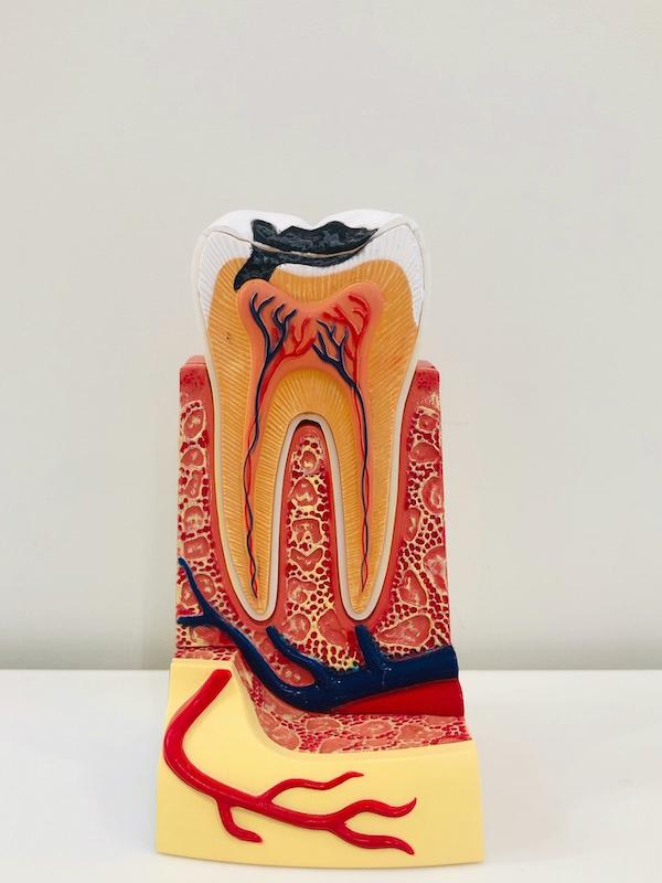 銀座みらい歯科_虫歯菌によって虫歯になってしまった歯の断面図の精巧な模型