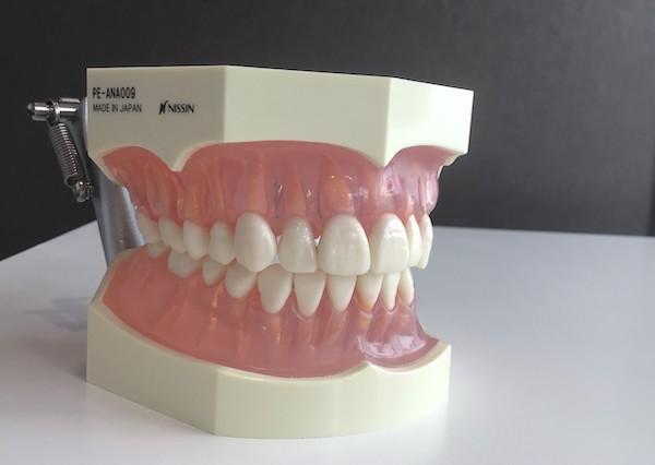 銀座みらい歯科_健康な白い歯とピンク色の歯茎の両顎の模型