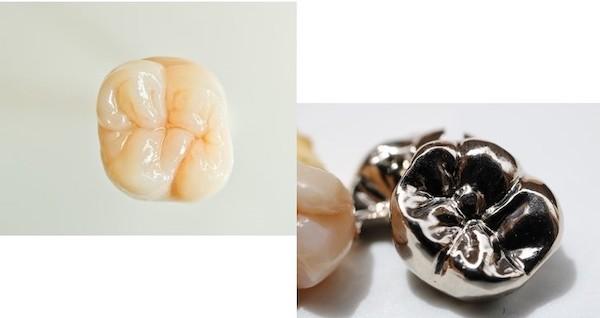 銀座みらい歯科の虫歯治療で使用する白いセラミックの被せ物と金属の被せ物