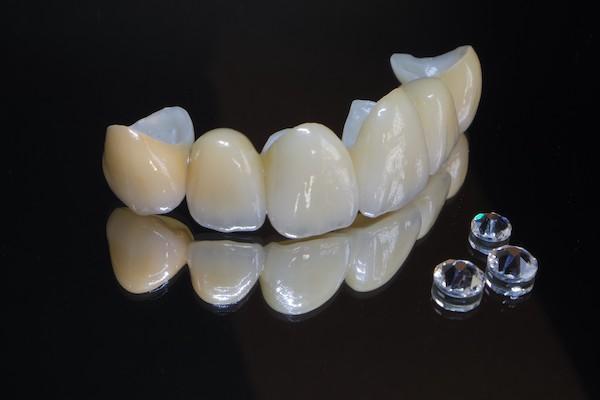 銀座みらい歯科で歯科治療に使用するセラミック素材ジルコニアのイメージ