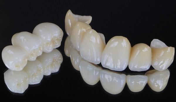 銀座みらい歯科で歯科治療に使用するセラミック素材ジルコニアの前歯と奥歯の被せ物のイメージ