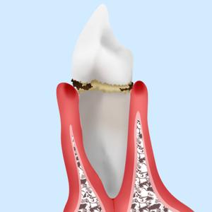 銀座みらい歯科の歯肉炎の説明_歯と歯茎の間に汚れがたまった歯のイメージ