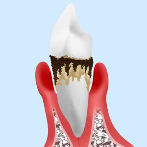 銀座みらい歯科の歯周病の説明_歯周組織の炎症で骨が溶けてしまった歯のイメージ