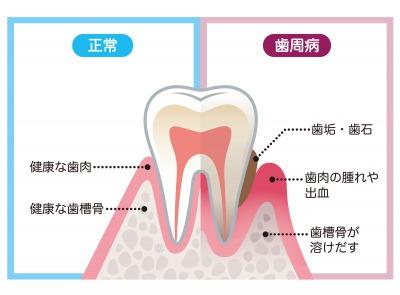 銀座みらい歯科のブログで説明する健康な歯周組織と歯槽骨、歯周病の歯周組織と歯槽骨の比較図