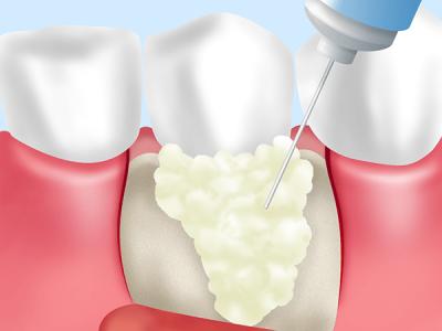 銀座みらい歯科_歯周組織再生治療のイメージ